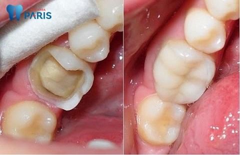 Bọc răng sứ cho răng hàm bị vỡ có thể ngăn ngừa bệnh lý nguy hiểm