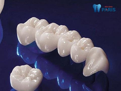 Răng toàn sứ là dòng răng sứ giúp khôi phục răng hàm bị vỡ tốt nhất