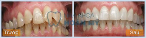 Bị lệch răng cửa phải làm sao để khắc phục hiệu quả?