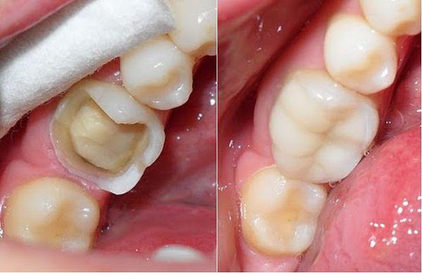 Bọc răng sứ cho răng hàm vỡ lớn có độ bền bao lâu?
