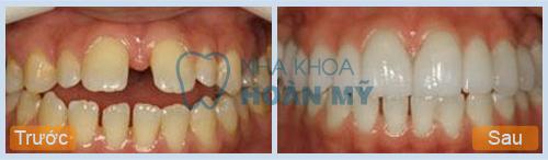 Có nên bọc sứ cho răng cửa bị mọc lệch hay không?