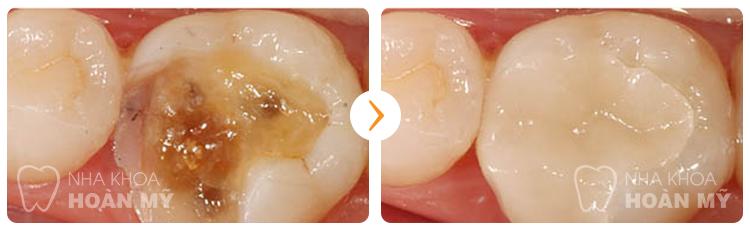 Đau hàm sau khi bọc răng sứ là do đâu?