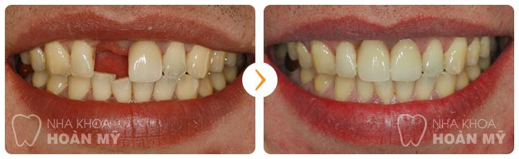 Thưa bác sĩ làm cầu răng cho răng cửa bị mất có đau không ?