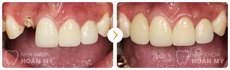 Làm cầu răng cho răng cửa có bền không ?
