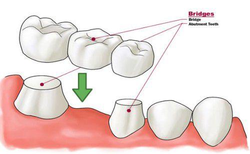 Hiện nay địa chỉ bọc răng nào tốt nhất ở Hà Nội thưa bác sĩ ?