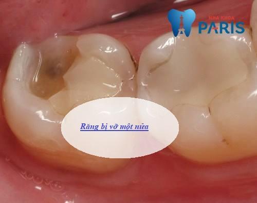 Răng bị vỡ hết một nửa có bọc sứ được không? Nha sĩ giải đáp 1