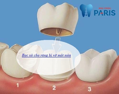 Răng bị vỡ hết một nửa có bọc sứ được không? Nha sĩ giải đáp 2