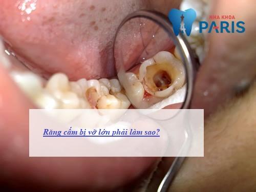 răng cấm bị vỡ phải làm sao