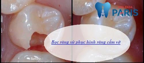 răng cấm bị vỡ lớn phải làm sao khắc phục nhanh