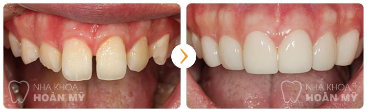Bọc răng sứ loại nào tốt nhất hiện nay?