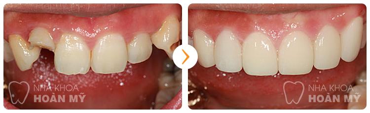 Thưa bác sĩ có nên bọc răng sứ kim loại cho răng cửa không ?