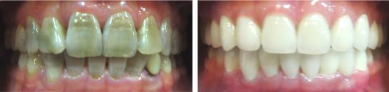 Răng xỉn màu do nhiễm Flo điều trị như thế nào?
