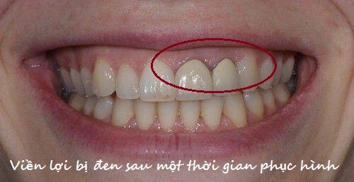 TOP 3 điều cần biết về phương pháp bọc răng sứ Dresden 2