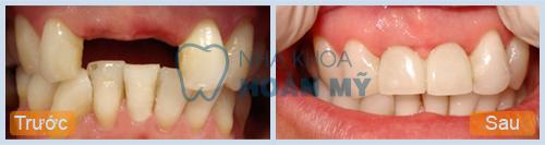Làm cầu răng khi mất 2 răng cửa có độ bền bao lâu?