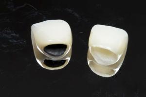 Thưa bác sĩ bọc răng sứ giá rẻ có đảm bảo răng miệng không ?