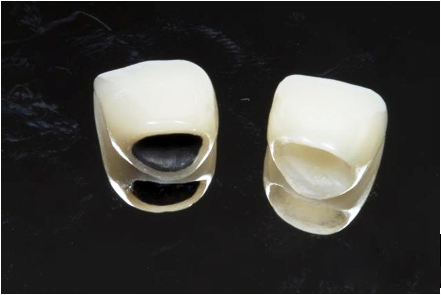 Một số thông tin cơ bản nhất về các loại răng sứ phổ biến 2