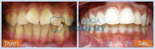 Sửa răng cửa mọc lệch hình chữ V phương pháp nào hiệu quả?