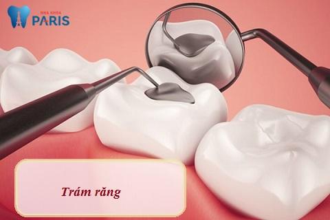 Trám răng - Biện pháp đơn giản, dễ bong tróc miếng trám