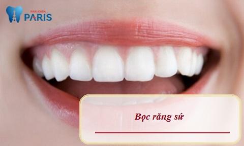 Bọc răng sứ - Biện pháp tối ưu điều trị răng nhiễm Tetracyline