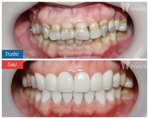 Hàm răng trắng sáng, chắc khỏe hơn sau khi bọc răng sứ