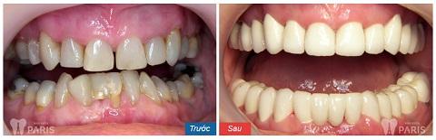 Khách hàng thay đổi hoàn toàn sau khi bọc răng sứ thẩm mỹ