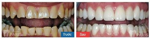 Nụ cười của khách hàng trở nên hoàn hảo hơn khi bọc răng sứ tại Nha khoa Paris