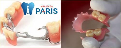 hàm răng giả tháo lắp nhựa 12