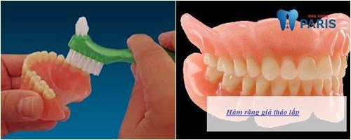 hàm răng giả tháo lắp nhựa