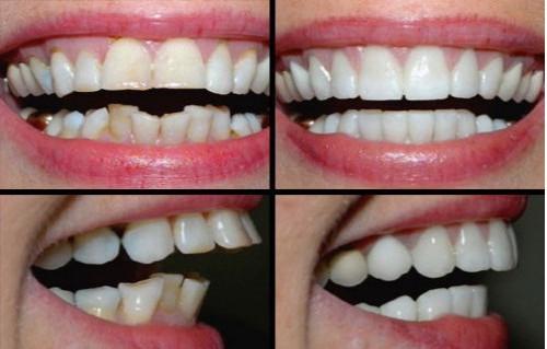 Bọc răng sứ - cách khắc phục răng bị lệch hiệu quả nhất 3