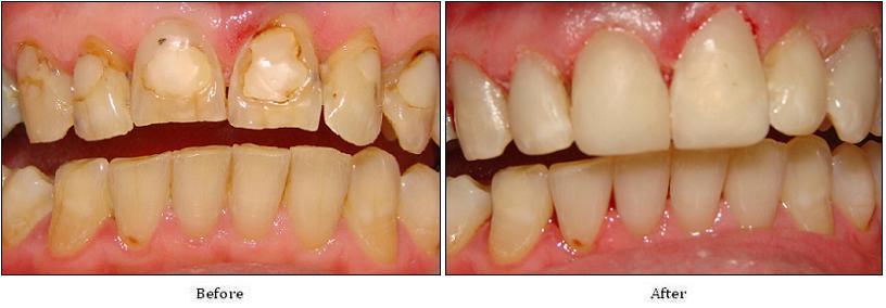 Bọc răng sứ cho răng cửa bị mòn có hiệu quả không?