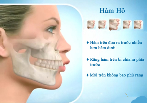 Để chữa răng bị hô cách nào là tối ưu nhất ?