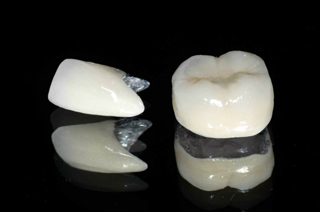 Làm răng sứ bằng titan có đẹp không? 1