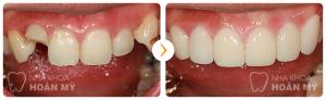 Khi mài nhỏ răng cửa có hại cho sức khỏe răng miệng không ?