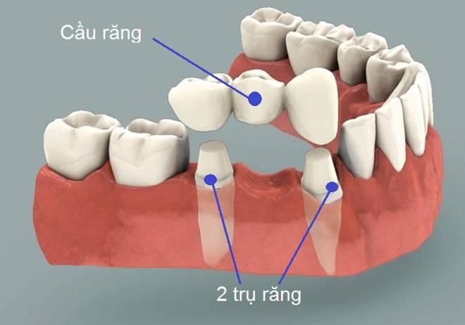 Theo ý kiến của chuyên gia việc làm cầu răng có tốt không a ?