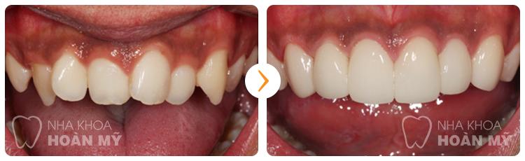 Thời gian sử dụng răng sứ cercon bao lâu là tối đa?