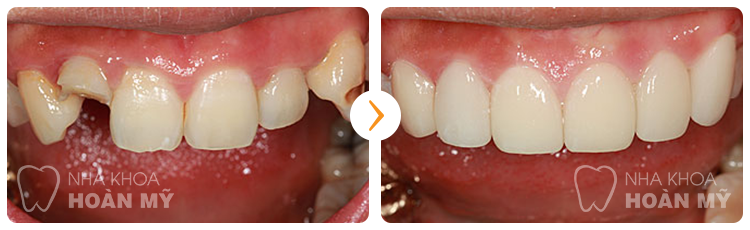 Xử lý răng cửa bị vỡ bằng bọc sứ có hiệu quả không?