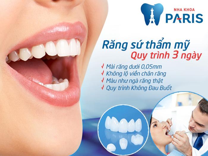 kỹ thuật bọc răng sứ ứng dụng công nghệ Nano Shining 5S
