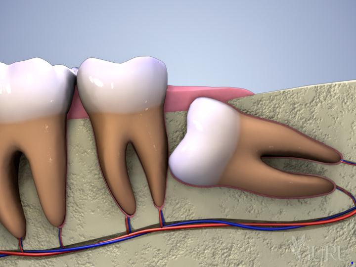 Có cần thiết phải thực hiện mài răng khôn không?