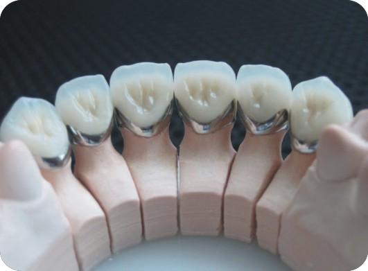 Hàn răng thưa ở đâu tốt và uy tín nhất hiện nay? 3