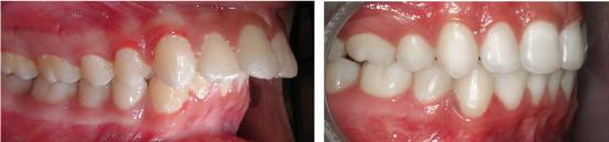 Phải làm sao để khắc phục tình trạng vẩu 2 răng cửa?