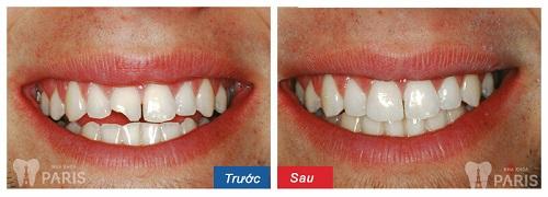Sứt răng cửa làm thế nào? Phương pháp phục hình răng bền đẹp 5