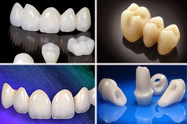 Những lưu ý quan trọng khi làm răng sứ thẩm mỹ cần biết ?