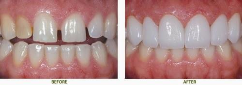 Nẹp răng thưa đảm bảo KHẮC PHỤC kẽ hở răng hoàn toàn 2
