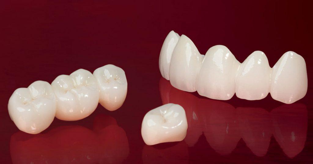 Bọc răng sứ hai răng cửa 2
