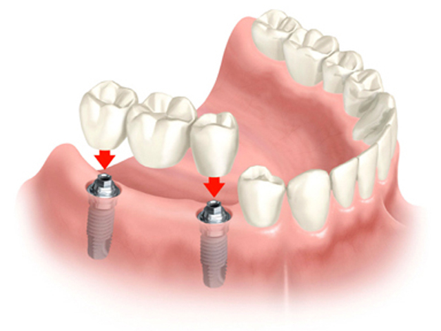 Có nên làm cầu răng phục hình răng mất không? Chuyên gia tư vấn 1