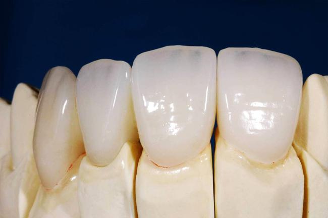 Làm cầu răng ở đâu tốt và chi phí thấp nhất năm 2016?1