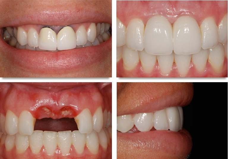 Có nên làm cầu răng phục hình răng mất không? Chuyên gia tư vấn 3