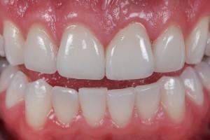 Bọc sứ áp dụng cho trường hợp răng xỉn đen do yếu tố nội sinh