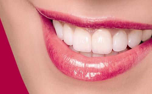 Bọc răng sứ Veneer có TỐT không và THẨM MỸ cao không? 1
