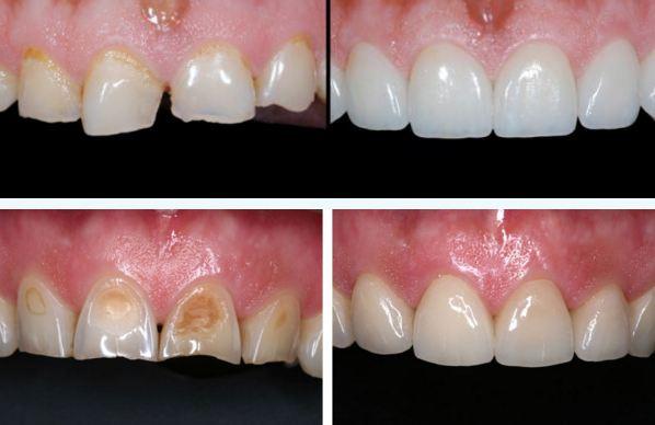 Bọc răng sứ Veneer có TỐT không và THẨM MỸ cao không? 2